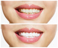 Teeth Before and After Whitening Royalty Free Stock Photo
