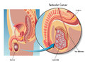 Testicular cancer medical illustration of the effects of Stock Photography
