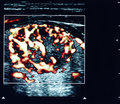 Thyroid nodule ultrasound Royalty Free Stock Images