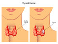 Thyroidcancer Arkivbild