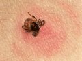 Tick bite with its head sticking in human skin red blotches indicate an infection Royalty Free Stock Photo