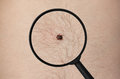 tick is sitting on the skin of a man, and magnified under a magnifying glass. Royalty Free Stock Photo