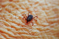 Tick on skin Stock Photo