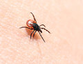 Ticks ​​on human skin. Royalty Free Stock Photos