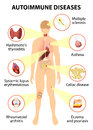 Tissues of the human body affected by autoimmune attack