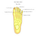 Toe fractures