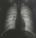 Tomography of human chest no pathologies Royalty Free Stock Photo