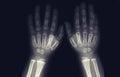 Tomography of toddler hands. no pathologies Royalty Free Stock Photo