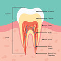 Tooth anatomy dental infographics Royalty Free Stock Photo