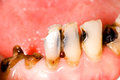 Tooth caries Royalty Free Stock Photo