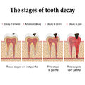 Tooth decay formation step by step forming dental plaque and finally caries and cavity Stock Photography