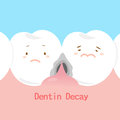 Tooth with dentin decay Royalty Free Stock Photo