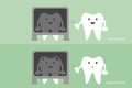 Tooth dentist x-ray healthy and unhealthy teeth Royalty Free Stock Photo