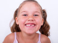Tooth gap little girl with big against a white background Royalty Free Stock Image