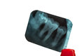 Tooth and overlapping teeth in X-ray film showing and tweezer on Royalty Free Stock Photo