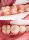 Before and after tooth restoration dental treatment Royalty Free Stock Images