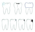 Tooth symbol vector set of teeth icons isolated on blue background with pail sign illustration Stock Photography