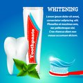Tooth whitening 1