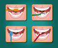 Toothbrush four steps to clean the teeth with toothpaste and Royalty Free Stock Photos