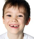 Toothless boy Royalty Free Stock Photo
