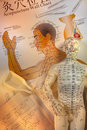 Traditional chinese acupuncture is a system of complementary medicine that involves pricking the skin with needles it is used to Stock Photo