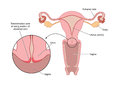 Transformation zone of cervix overview female reproductive organs with detail the the Stock Photo