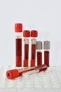 Tubes blood sample Royalty Free Stock Photo