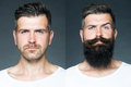 Two merged images of one man collage portrait handsome on left bristle haired on right unshaved with long beard and moustache Royalty Free Stock Photo