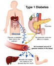 Type 1 diabetes medical illustration with english description