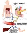 Type 2 diabetes medical illustration with english description