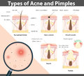 Types Of Acne And Pimples, Vec...
