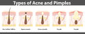 Types of acne, structure of pimple, vector illustration