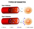 Types of diabetes type and type mellitus insulin dependent mellitus and non insulin dependent mellitus Stock Images