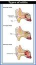 Types of otitis : external, average and internal otitis. Royalty Free Stock Photo