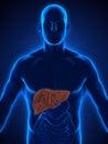 Unhealthy Liver Anatomy