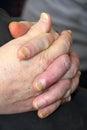 Unhealthy nails belong to man symptom of an illness Royalty Free Stock Photos