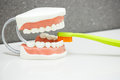Upper and lower jaw dental model with toothbrush Royalty Free Stock Photo