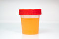 Urine Sample in closed transparent plastic can.