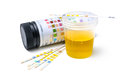 Urine test strips medical exam the Stock Photo