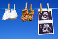 Utrasound and baby booties a ultrasound are hanging at a clothesline Royalty Free Stock Photography