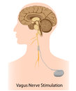 Vagus nerve stimulation therapy Royalty Free Stock Photography