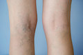 Varicose veins Royalty Free Stock Photo