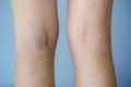 Varicose veins on a leg Royalty Free Stock Photos