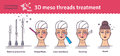 Vector Illustrated set with 3d Meso Thread face Lift therapy