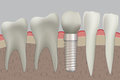 Vector normal teeth and dental implant. Royalty Free Stock Photo