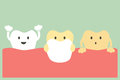 Veneers teeth