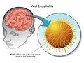 Viral encephalitis medical illustration of the virus of Royalty Free Stock Photography