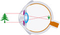 Vision eyeball optics lens system rays of light are bundled by the in the human eye and are inverse focused on the retina Royalty Free Stock Photo