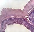 Wall large intestine mammal