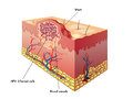 Wart medical illustration of a section of a Stock Image